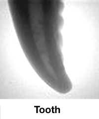 X-Ray-Image-Tooth_01.jpg